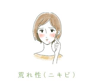 荒れ性(ニキビ)
